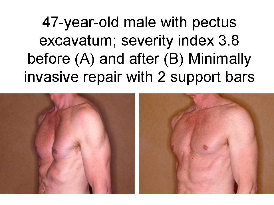 Pectus Excavatum to repair pectus excavatum